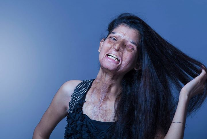 acid attack photoshoot
